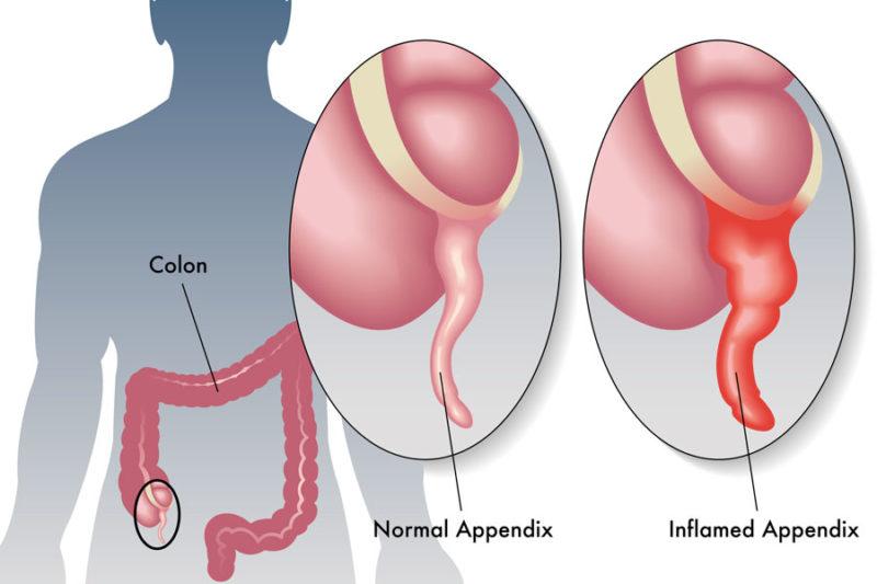 Cosa è l'appendicite?